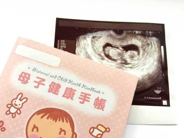 母子手帳とエコー検査